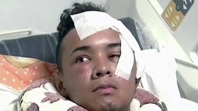 Gözüne bıçak saplandı, beyni delindi