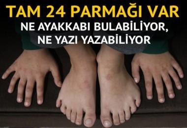 6 parmaklı Demirhan ne yazı yazabiliyor, ne ayakkabı bulabiliyor
