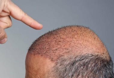 Saç ekimi nedir?