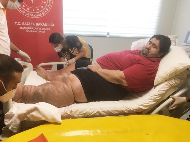 Esenyurt'ta 300 kiloluk genç adamın çilesi